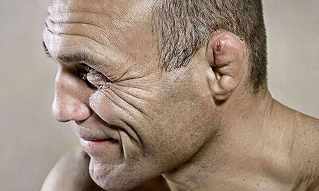 Уши борцов: почему они такие поломанные, как ломаются, наушники для защиты от сломанных ушных раковин
